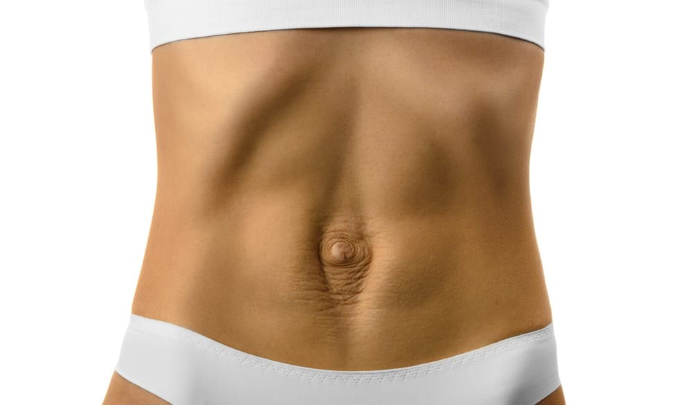 What Is Diastasis Recti and Can Emsculpt Help? - A New You Aesthetics